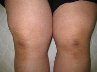 町田の整体の膝痛に悩む方の太もも施術前