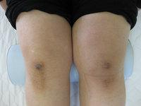 町田の整体の膝痛に悩む方の太もも施術後